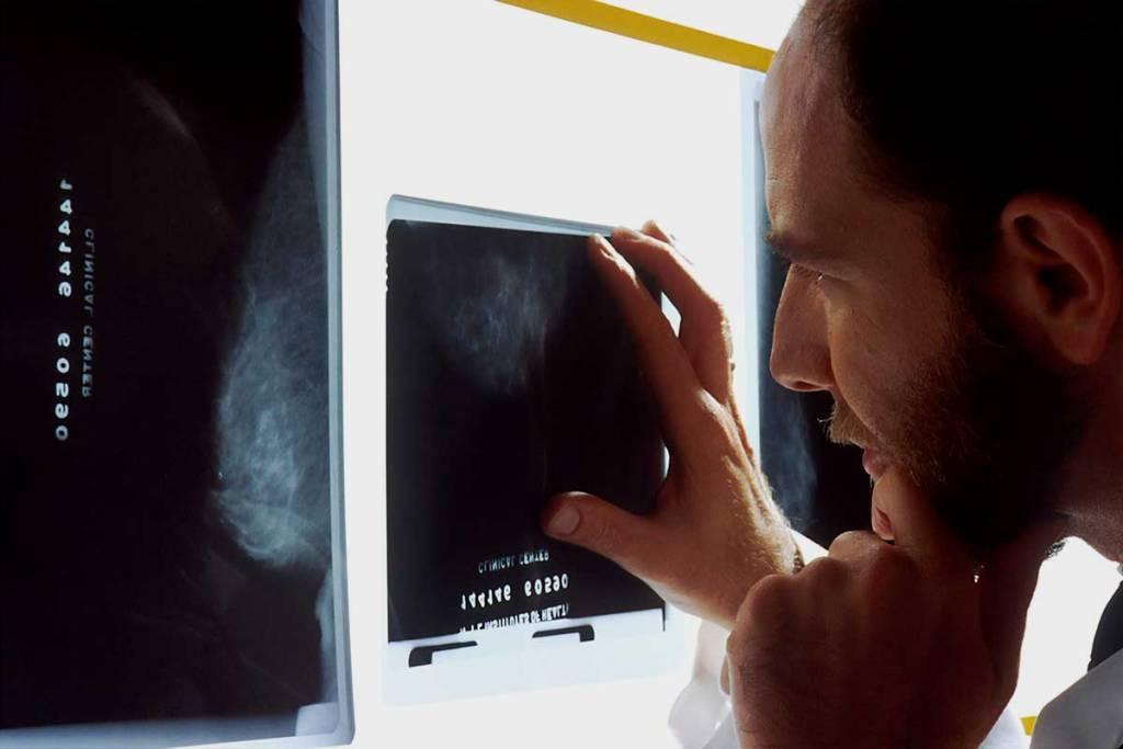 Vall d'Hebron identifica una proteïna clau per evitar la metàstasi del càncer de mama. (social.cat / AMIC)